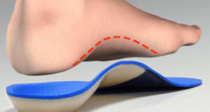 Cropped Foot orthotic